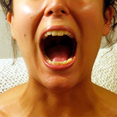 Problemas mandibulares y máxilo-faciales